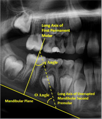 Comparison of the Angulation of the Unerupted Mandibular Second Premolar in Turkish Population with Tooth Agenesis