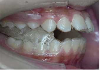 Comparison of Dentoskeletal Changes, Esthetic, and Functional Efficacy of Conventional and Novel Esthetic Twin Block Appliances among Class II Growing Patients: A Pilot Study