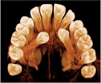 Strategies for Managing the Risk of Mucogingival Changes During Impacted Maxillary Canine Treatment