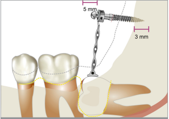 Up-to-Date Approach in the Treatment of Impacted Mandibular Molars: A Literature Review