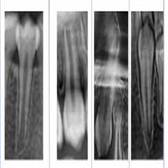 Assessment of the Relationship between Skeletal Maturity and the Calcifications Stages of Permanent Canines and Second Premolars